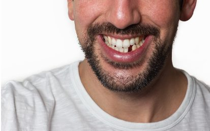 Is it important to replace your missing teeth?