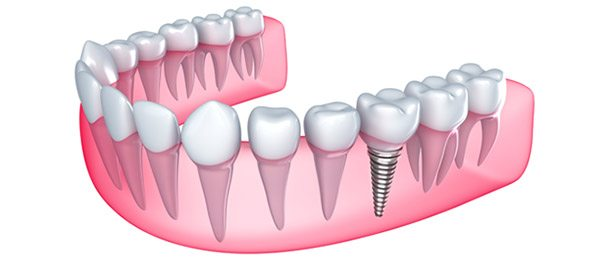 single-tooth-implant-gold-coast