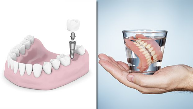 dentures vs implant