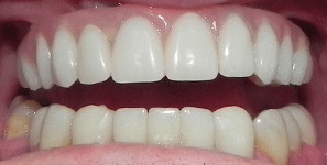 lower front teeth