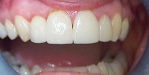 single tooth implants after