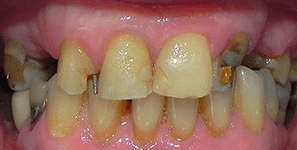 single tooth implant before